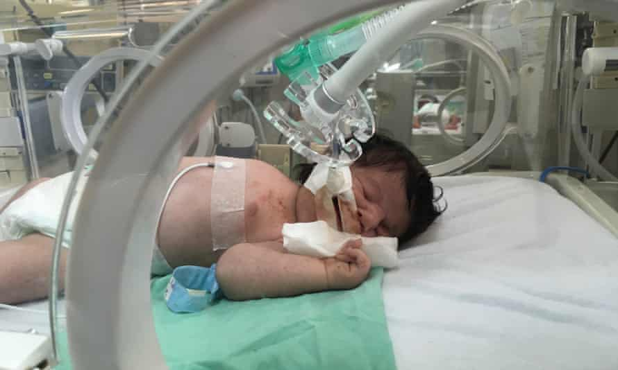 A baby born with congenital heart disease in Shifa hospital's neonatal unit