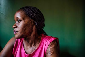 Linette Kirungi, 28, in her office in Kampala, where she is a programme officer at End Acid Violence Uganda. Due to her own experience, she helps other survivors. Lynette was attacked with acid by her boyfriend in 2012 because she wanted to focus on her career first and not marry him.
