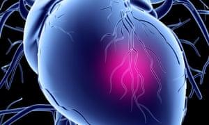 Artwork depicting a heart attack