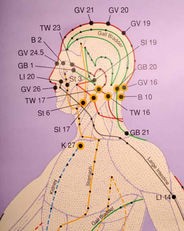 close up of acupuncture chart