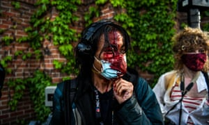 A journalist is seen bleeding after police started firing teargas and rubber bullets near the fifth police precinct in Minneapolis on 30 May.