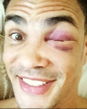 Ogogo's bruised face after the fight against Cunningham.