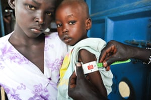 Yar, 11, with her cousin Apiu, two, at Abiriu primary health care centre in Western Lakes state, South Sudan.