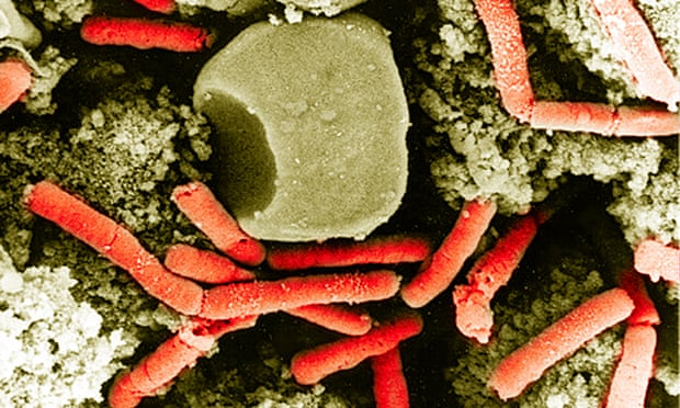 What You Need To know About Acute Infectious Anthrax?