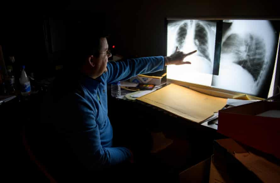 Dr Brandon Crum reads the chest x-rays of a miner in his office outside Pikeville, Kentucky.