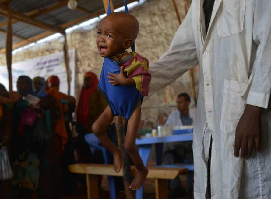 A malnourished child is weighed by an aid worker at a facility in Baidoa.