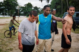 Injured refugees from the Australian-funded Manus Island detention centre in Lorengau after an alleged attack by a group of Papua New Guinean men.