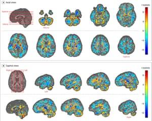 Il cervello scansiona rivelando le differenze nel volume della materia bianca e grigia tra i pazienti dell'ambasciata americana a L'Avana e controlli sani.  Le regioni da giallo a rosso mostrano aree di volume maggiore nei pazienti, mentre il ciano a blu segna aree di volume inferiore nei pazienti rispetto ai controlli.