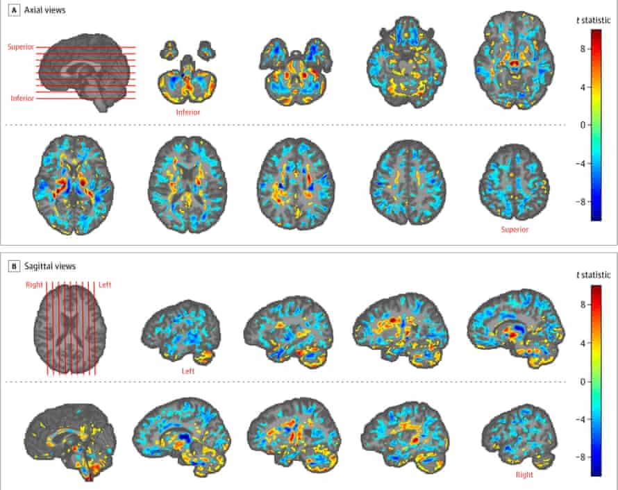 Brain scans revealing differences in white and grey matter volume between patients from the US embassy in Havana and healthy controls. The yellow to red regions show areas of higher volume in the patients, while cyan to blue marks areas of lower volume in the patients versus controls.