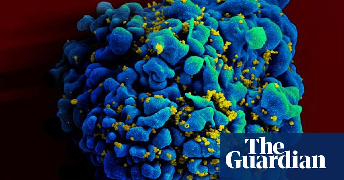 End to Aids in sight as huge study finds drugs stop HIV