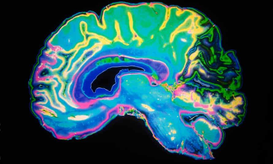 Artificially coloured MRI scan of a human brain.