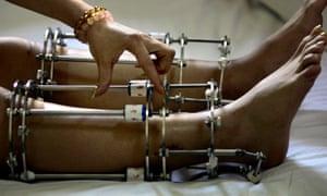 Legs in lengthening braces