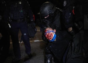 A policeman arrests a protestor injured in the face during a march to denounce police brutality and racism.