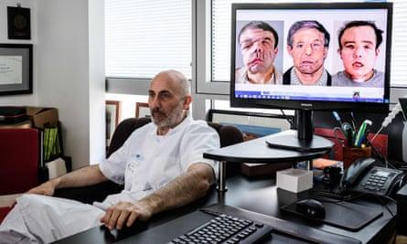 French medicine professor Laurent Lantieri poses next to a screen showing different steps of his patient Jérôme Hamon's surgery.