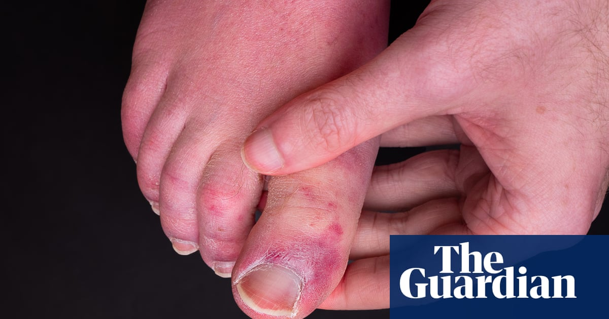 'Covid toe' may be side-effect of immune response, says study