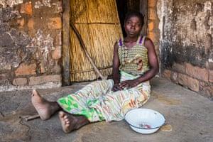 Malawian mother Alufufasi Yalu, who has nothing to eat