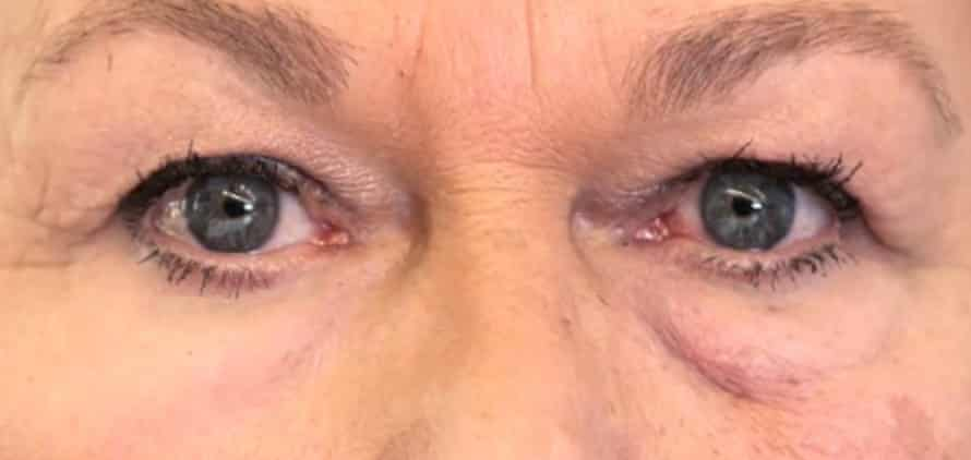 The most impressive results came when the scientists applied the film to under-eye bags: the eye on the left has had the film applied.