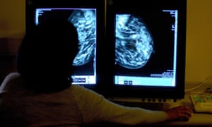 A consultant studies a mammogram.