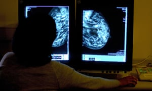 A consultant studying a mammogram.