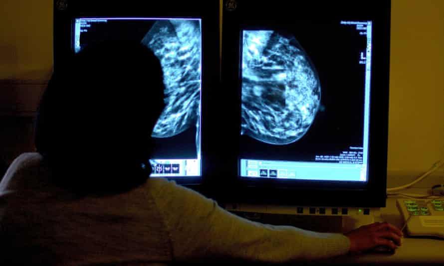 A woman studies a mammogram