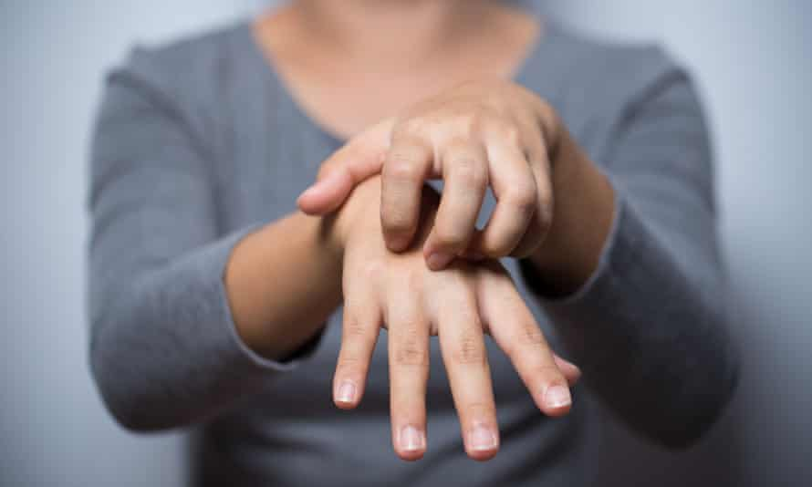 Doctors investigating the link between eczema and heart problems say sufferers should not be alarmed as the overall risk is still low.