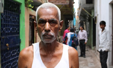 Rammurat, a 25-year-resident of Tahir Pur, who contracted leprosy when he was aged 14. He is one of 2,000 people living with the disease in the east Delhi colonies.