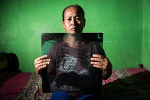 50-year-old Munjiah holds her chest X-Ray, showing specks strongly suspected to be coal dust in her lungs