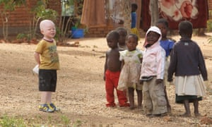 Cassim Jaffalie, three, with his friends at his family home in Machinga, southern Malawi