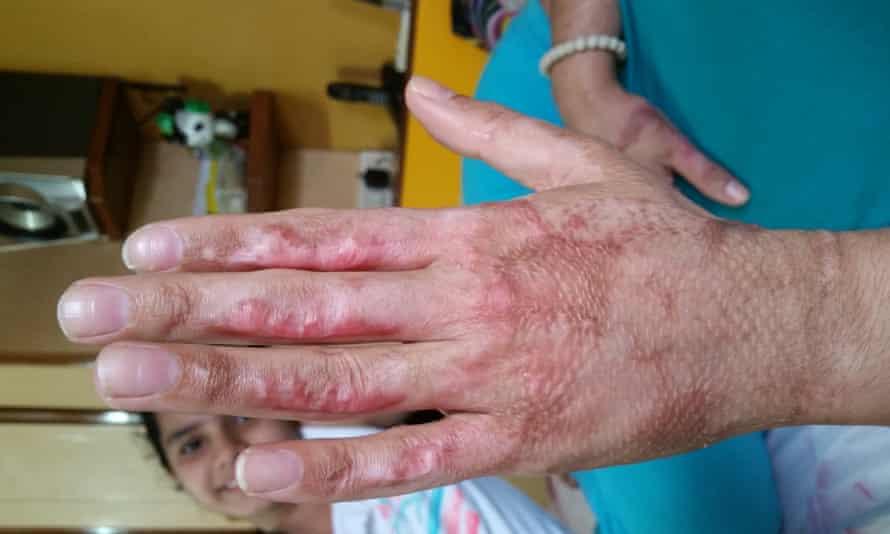 Her burned hand.