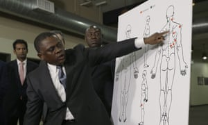 Bennet Omalu gestures to a diagram showing the gunshot wounds he found on the body of Stephon Clark.