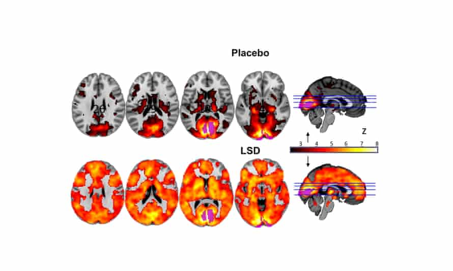 Brain scans on the brain on LSD and on a placebo