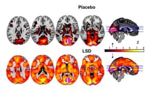 LSD brain scan
