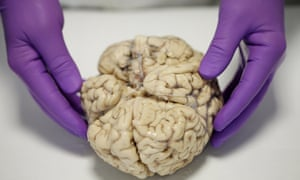 Brain being dissected