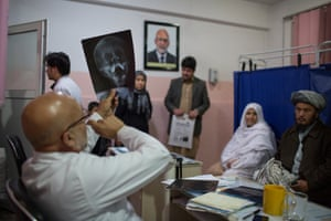 Doctor views an x-ray of patient