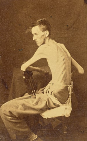Private Jackson O. Broshers at US General Hospital in Annapolis, Maryland, after being held by the Confederate Army as a prisoner of war, 1864