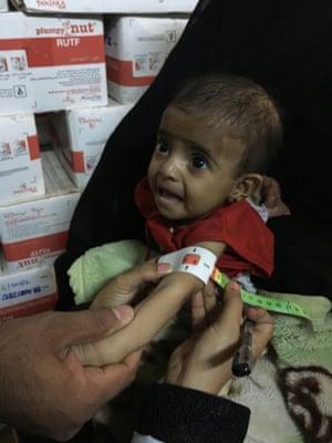 Baby Ayesha being measured at Alsalkhana hospital in Hodeidah