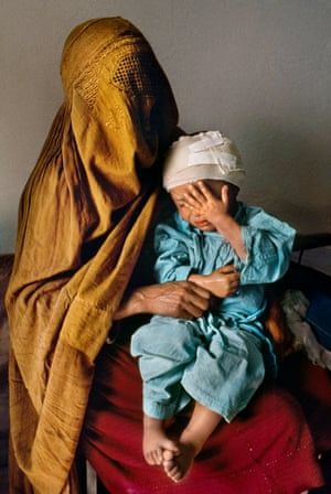 Kabul, 1992: A mother holds her two-year-old son, who was grazed by a stray bullet, at Karte Seh surgical hospital.