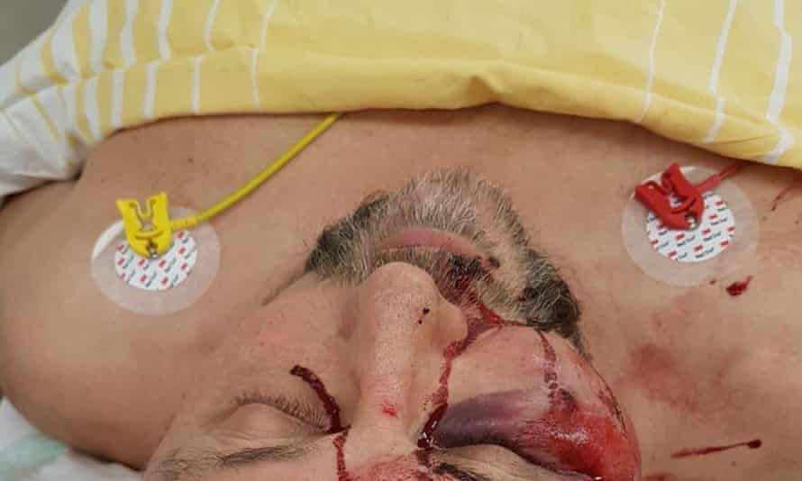 The AfD released a picture of Frank Magnitz in hospital after the attack.