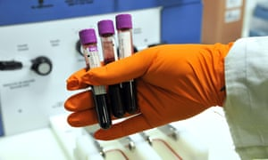 New Ovarian Cancer Blood Test Could Reduce Deaths By A Fifth Science The Guardian