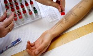 A skin prick test for allergens