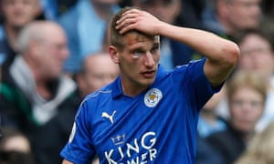 Leicester City's Marc Albrighton with the lump under his eye.