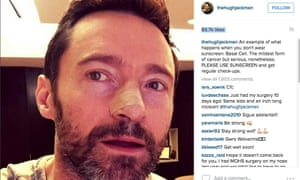 Hugh Jackman posting an image of his nose after the removal of a basal cell skin cancer, and urging followers to wear sunscreen.