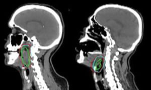 Software has been developed to accurately contour head and neck tumours