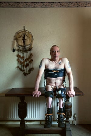 Disabled man sits on a table