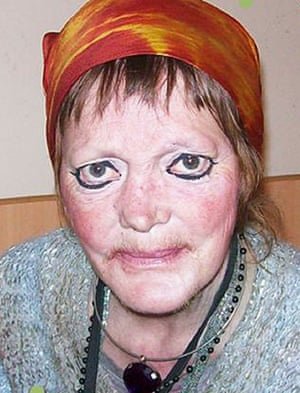 Majella Lynch, 51, died of an infection in hospital following the assault.
