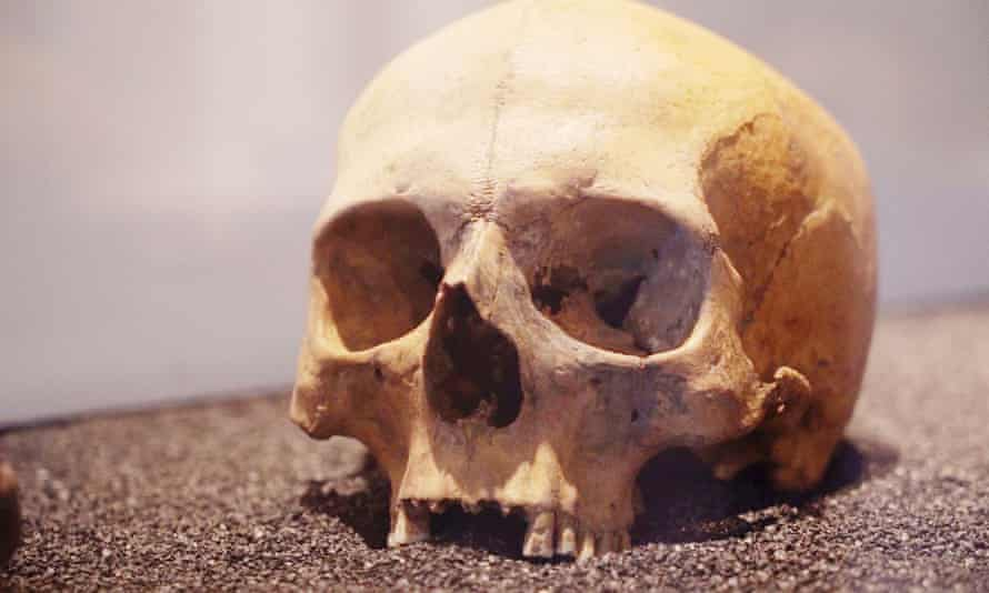 This skull of a Roman Londoner who met a violent end was found in a pit with 38 others.