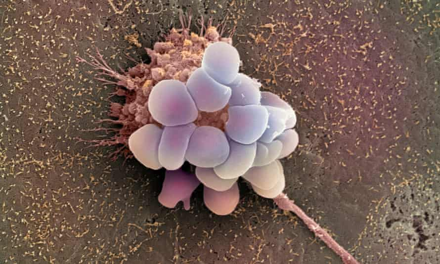 An electron micrograph image of an ovarian cancer cell. Ovarian cancer does not normally produce symptoms until it has reached an advanced stage yet the prognosis is poor unless it is detected early.