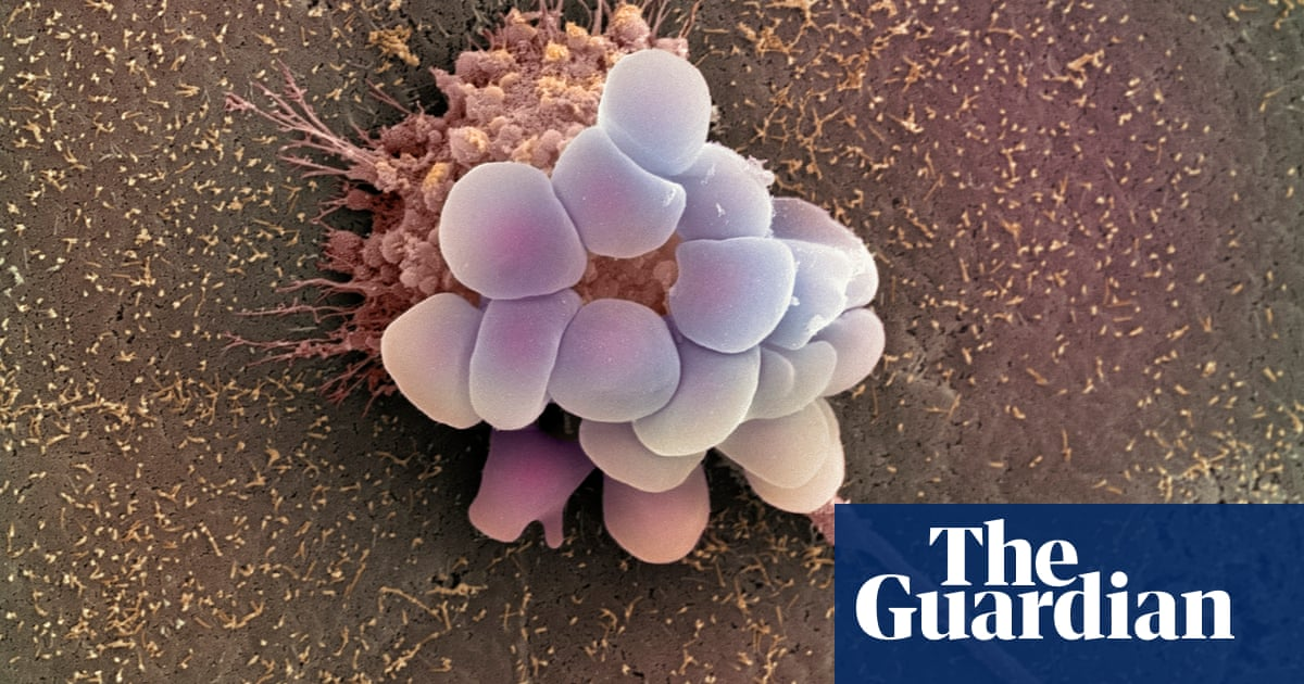 Annual screening for ovarian cancer does not save lives, study finds