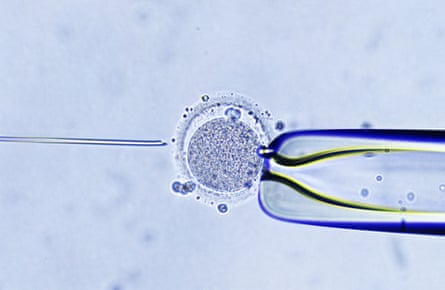 Intracytoplasmic sperm injection: 'a kind of stylised recapitulation of sexual intercourse'.