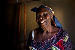 Agwandia Jermanine, 63 Ebola survivor